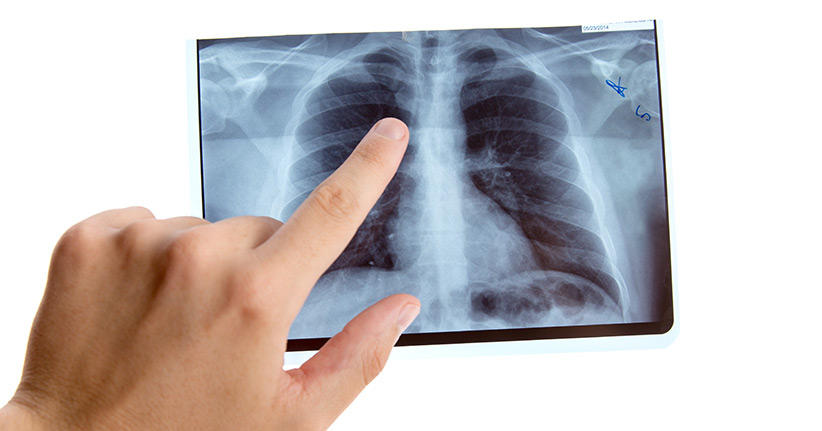 Lungenembolie Erkennen