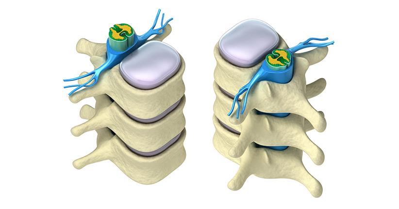 Das Rückenmark - die Verbindung zwischen Körper und Geist