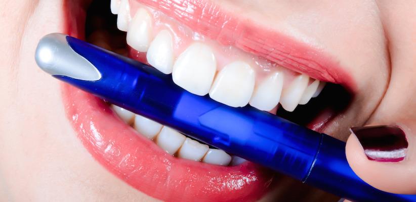 Welche Methode macht die Zähne weißer?